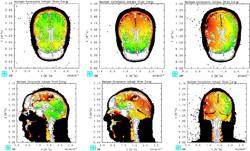 Traumatic brain injury simulation