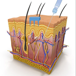 Diagram of layers of skin with microneedles and traditional hypodermic needle for scale.