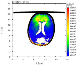 AXIAL VIEW of shear stress in head model (glass at top); shear stress highest at brain-ventricle interface.