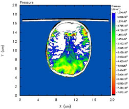 AXIAL VIEW of tensile pressure in head model (glass at top); tensile pressure highest at back of head (Contrecoup site).